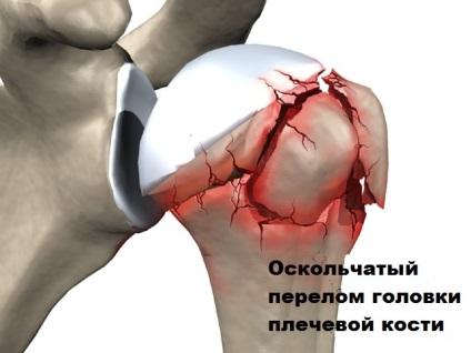 Váll sérülés ősszel - Mindkét térdízület ízületi gyulladása és kezelése