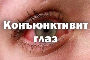 Кон'юнктивіт очей лікування у дорослих, краплі, симптоми, вірусний