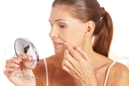 Jak usunąć fałdy nosowo-wargowe w kabinie bez zastrzyków