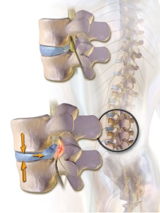 Лікування грижі хребта народними засобами без операції симптоми, відвари і настої, застосування