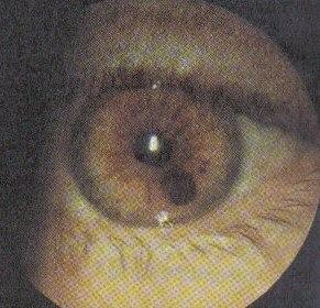 Симптоми і лікування меланоми ока