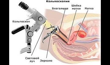 Гінекологія, клініка центр еко в Волгограді