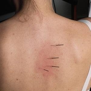 Міжреберна невралгія ознаки і методи лікування