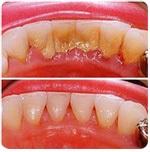 Терапія - щадне лікування зубів без болю