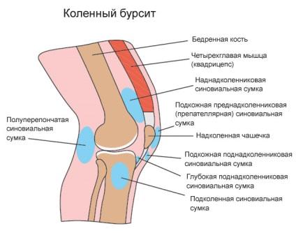 Prevenirea ?i tratamentul herniei spinoase