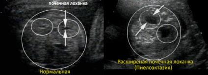 Піелоектазія нирок правої і лівої у дорослих і дітей