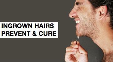 Jak pozbyć się wrastających włosów, life4beard