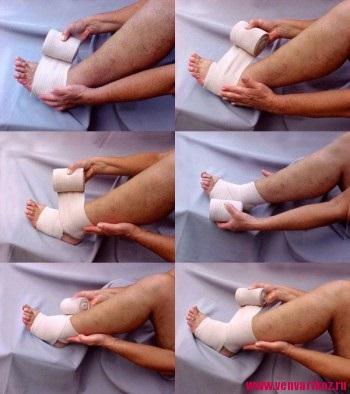 este posibil atunci când vene varicoase pentru a trage bandaje elastice