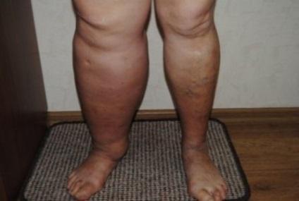Pete negre pe picioare cu vene varicoase
