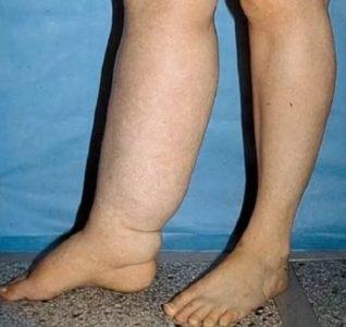 cu un picior de picior varicos mai gros decât altul)