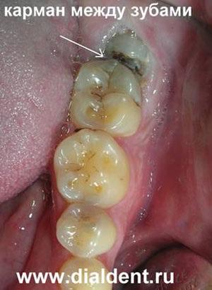 Коли видалення зуба мудрості стає необхідною процедурою