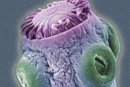 Oxiurii – paraziti intestinali Tratament cu bandă de viermi