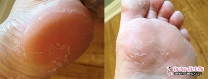 Лопається шкіра на ступнях ніг причини
