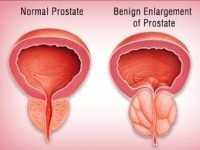 A Prosztate Vélemények transzuretrális resekciója