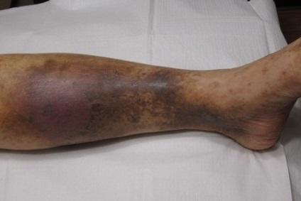 Petele brune pe picioare sunt varice sau nu ,unguent pe bază de troxevasină pentru varice