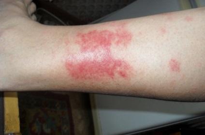 proceduri de noroi pentru varicoză