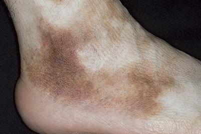 pete întunecate în tratamentul venelor varicoase tricotaje de compresie cu fotografie vector de varicoză