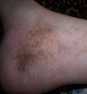 extindeți cu vene varicoase