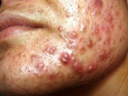 Акне - причини прищів акне, стадії розвитку вугрової висипки, методи лікування акне
