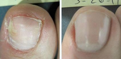 Поради Олени Малишевої як вилікувати грибок ніг і нігтів за місяць