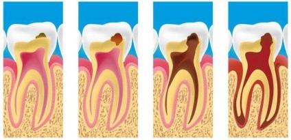 Киста зуба: лечение народными средствами в домашних условиях