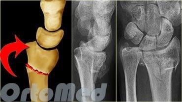 csukló helyreállítása a radiális csont törése után)