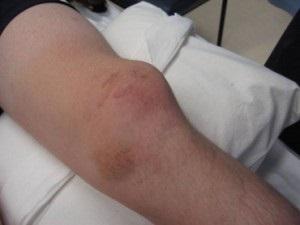A térd artrózisának fekvőbeteg kezelése