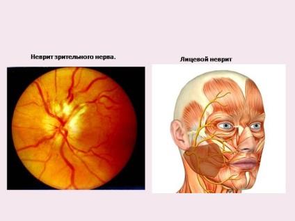 Látóideg ideggyulladása - Pszichoterápia