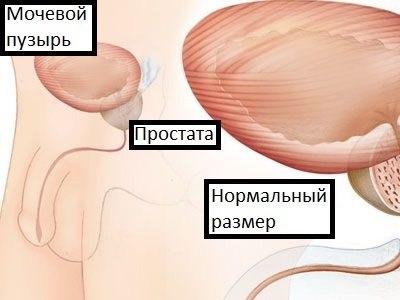 Prosztata mérete :: Dr. Koncz Pál - InforMed Orvosi és Életmód portál :: prosztatarák