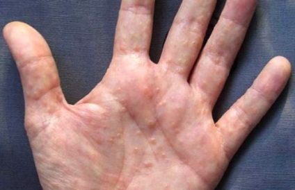 аллергия на руках мелкая сыпь
