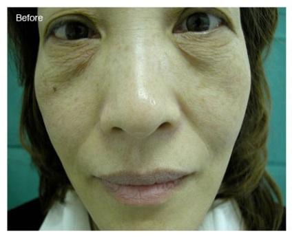 Лиотон в косметологии для лица отзывы