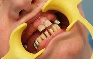 Как лучше сделать зуб если его нет 130