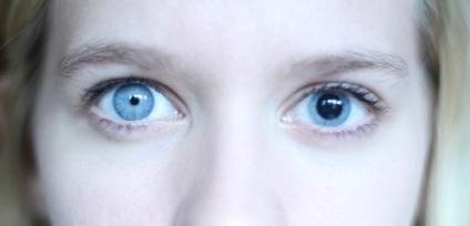 Leggyakoribb szembetegségek - a megelőzés jegyében - Buláke Blog - Információs Oldal