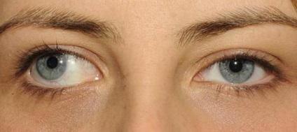 A kancsalság (strabismus)