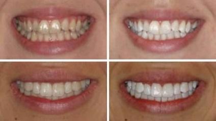 A legjobb módja annak, hogy fehéríti a fogakat otthon