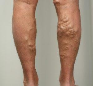 csomók a visszér lábain mit kell használni visszér és terhesség esetén