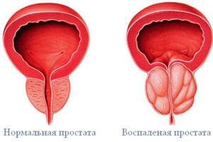 Prostatitis krónikus következmények