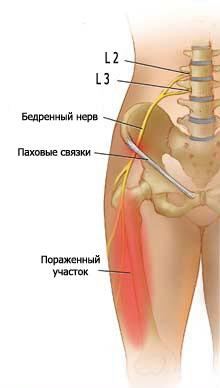 csípő neuralgia kezelése