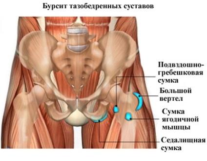 csípő bursitis