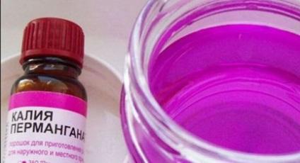 kezelés kálium-permanganáttal