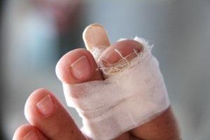 nagy lábujj törés tünetei ételmérgezés ízületi fájdalom