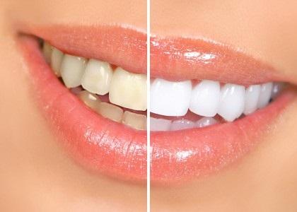 Hogyan fehéríti fogait otthon zománc és vihető véghez anélkül