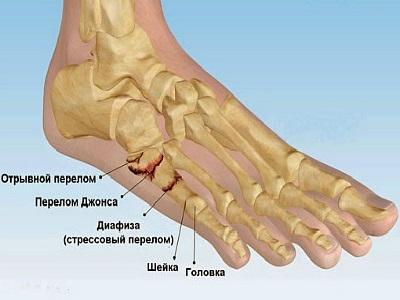 lábközépcsont fájdalom futás