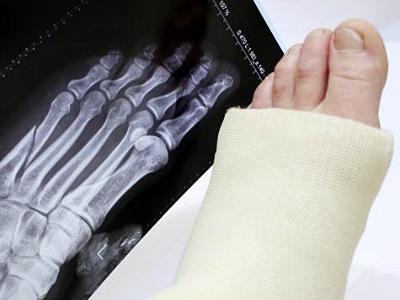 Klasszis kényszerpihenőn – a lábközépcsonttörésről