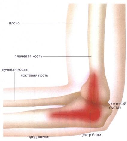 Мышечные боли в локтевом суставе