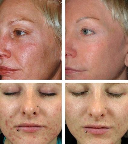hogyan lehet javitani az arc alakjat otthon