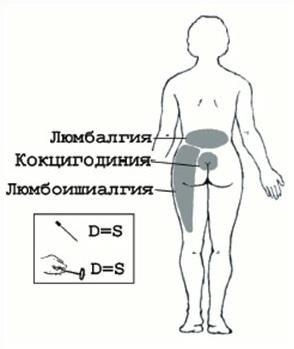 Люмбоишиалгия у беременных лечение 383