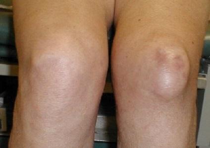 fájdalom a láb ízületeiben elsősegély
