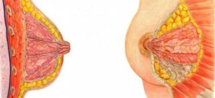 intraductalis papilloma eltávolítási eljárás