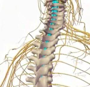 Tratamentul herniei spinale a lui Lazarev